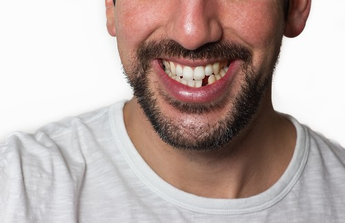 I'm Missing a Tooth. What Should I Do?
